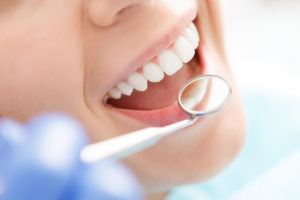 Parodontite come prevenirla visite regolari dentista