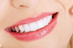 sbiancamento denti risultati trattamento